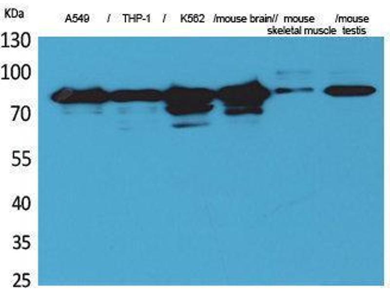 Western Blotting (WB) image for anti-Protein Kinase C, gamma (PRKCG) (Internal Region) antibody (ABIN3187692)
