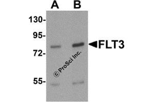 Western Blotting (WB) image for anti-Fms-Related tyrosine Kinase 3 (FLT3) (N-Term) antibody (ABIN1077372)