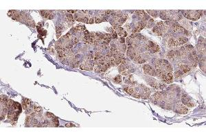 Image no. 1 for anti-phosphofurin Acidic Cluster Sorting Protein 2 (PACS2) antibody (ABIN6264008)