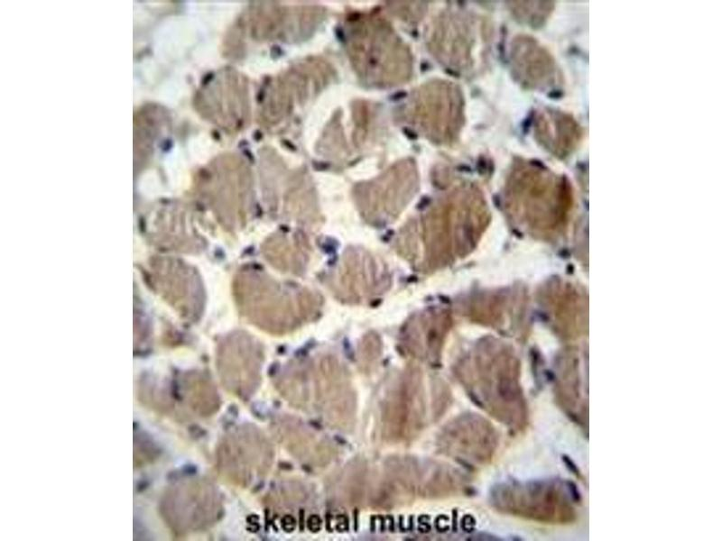 Immunohistochemistry (Paraffin-embedded Sections) (IHC (p)) image for anti-Coagulation Factor C Homolog, Cochlin (Limulus Polyphemus) (COCH) (AA 398-428), (Middle Region) antibody (ABIN951612)