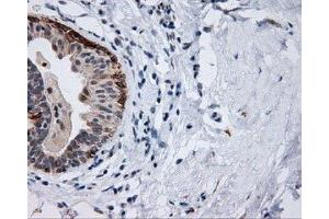Immunohistochemistry (IHC) image for anti-Induced Myeloid Leukemia Cell Differentiation Protein Mcl-1 (MCL1) antibody (ABIN4333175)