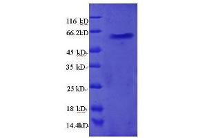 Image no. 1 for Ribosomal Protein L5 (RPL5) (AA 2-297), (full length) protein (GST tag) (ABIN1607987)