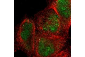 Immunofluorescence (IF) image for anti-SIX Homeobox 1 (SIX1) antibody (ABIN4353939)