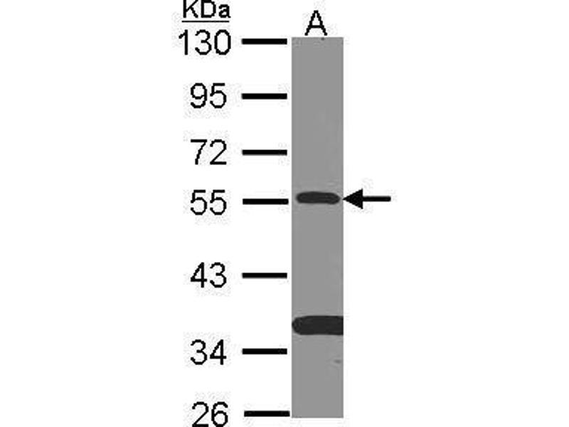 Western Blotting (WB) image for anti-SMAD9 Antikörper (SMAD Family Member 9) (Center) (ABIN2856962)