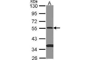 Western Blotting (WB) image for anti-SMAD Family Member 9 (SMAD9) (Center) antibody (ABIN2856962)