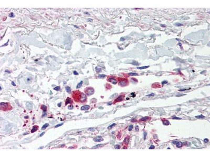 Immunohistochemistry (IHC) image for anti-Toll-Like Receptor 5 (TLR5) (Internal Region) antibody (ABIN214528)