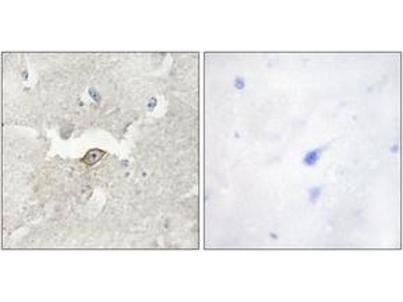 Immunohistochemistry (IHC) image for anti-Lemur tyrosine Kinase 2 (LMTK2) (AA 651-700) antibody (ABIN1533992)