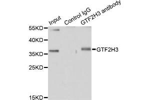 Image no. 1 for anti-General Transcription Factor IIH, Polypeptide 3, 34kD (GTF2H3) antibody (ABIN6570978)