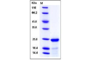 Image no. 1 for Fibroblast Growth Factor 21 (FGF21) (AA 1-210) protein (His tag) (ABIN2007779)