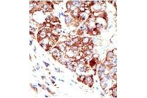 Image no. 2 for anti-Protein Inhibitor of Activated STAT, 1 (PIAS1) (C-Term) antibody (ABIN4620533)