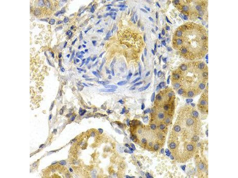 Immunohistochemistry (IHC) image for anti-BCL2-Associated Agonist of Cell Death (BAD) antibody (ABIN3022203)