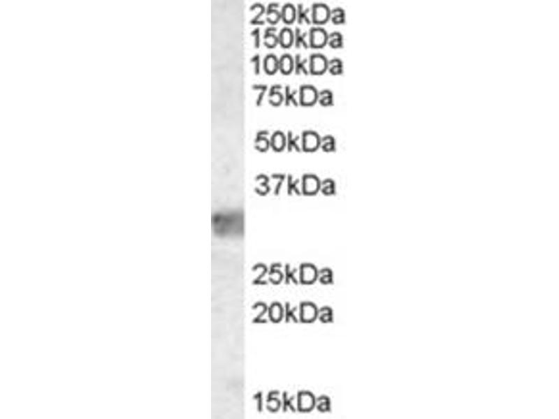 image for anti-MYD88 antibody (Myeloid Differentiation Primary Response Gene (88)) (Internal Region) (ABIN374527)