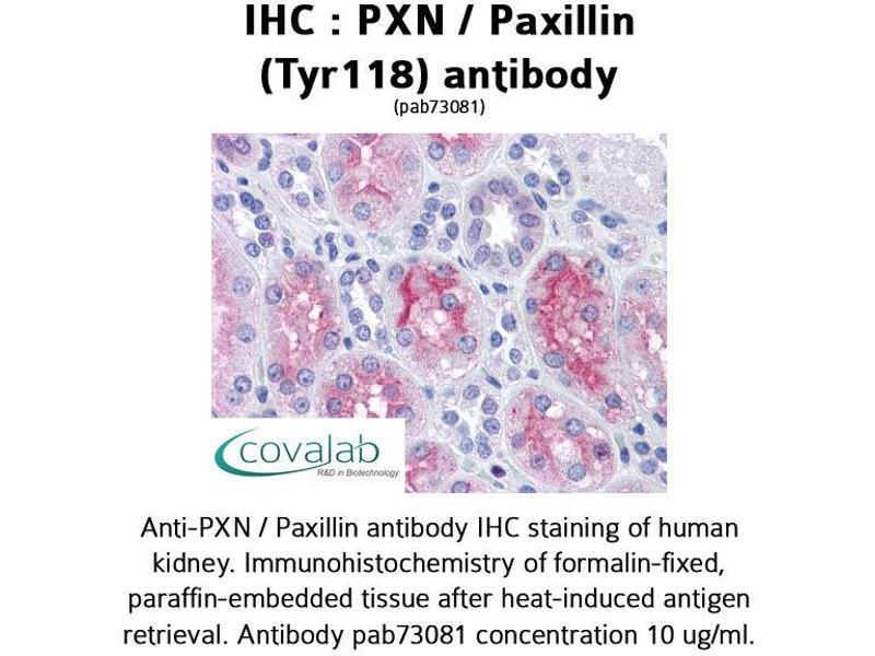 image for anti-Paxillin antibody (PXN) (Tyr118) (ABIN1738635)