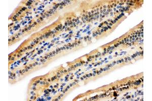 Image no. 1 for anti-Ubiquitin-Like with PHD and Ring Finger Domains 2, E3 Ubiquitin Protein Ligase (UHRF2) (AA 15-54), (N-Term) antibody (ABIN3044559)