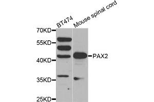 Image no. 1 for anti-Paired Box Gene 2a (PAX2A) antibody (ABIN6569434)