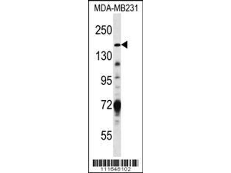 Western Blotting (WB) image for anti-Tuberous Sclerosis 1 (TSC1) (AA 401-430), (Center) antibody (ABIN652207)