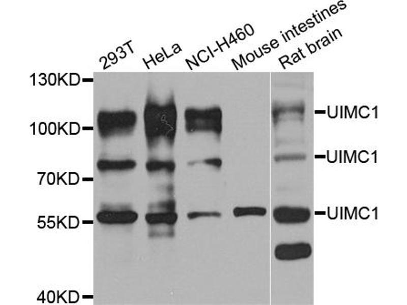 Western Blotting (WB) image for anti-Ubiquitin Interaction Motif Containing 1 (UIMC1) antibody (ABIN6571014)
