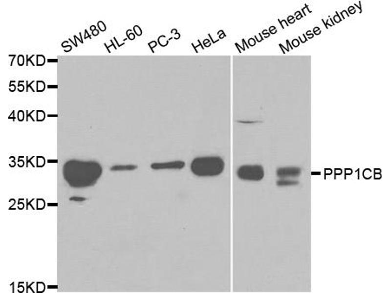 Image no. 2 for anti-Protein Phosphatase 1, Catalytic Subunit, beta Isoform (PPP1CB) antibody (ABIN6567037)