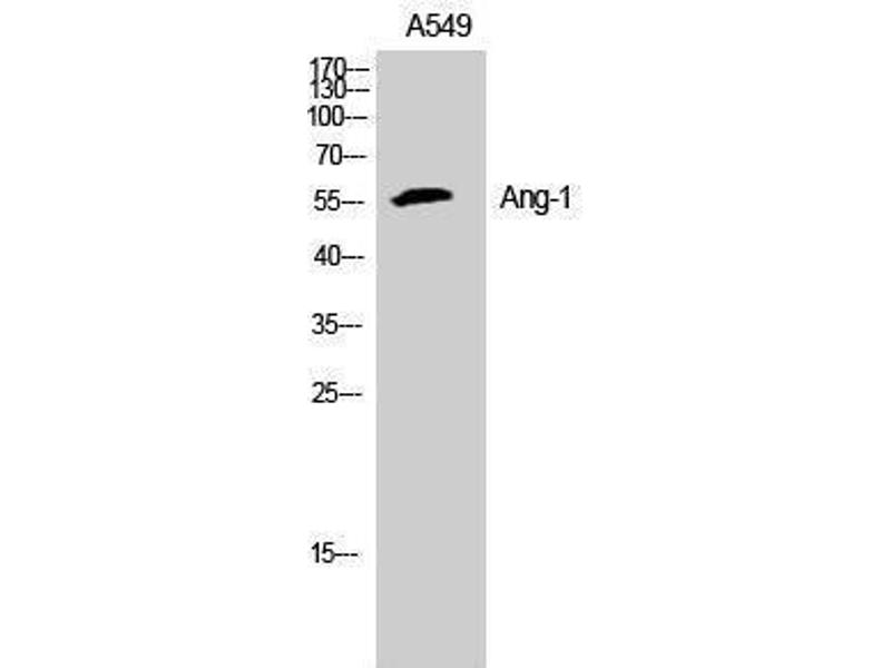 Western Blotting (WB) image for anti-Angiopoietin 1 (ANGPT1) (N-Term) antibody (ABIN3181025)