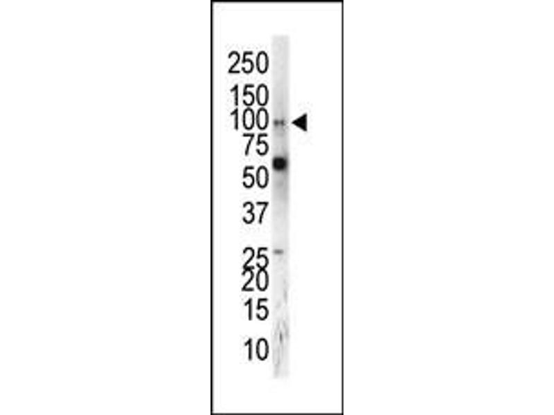 Western Blotting (WB) image for anti-EPH Receptor A5 antibody (EPHA5) (C-Term) (ABIN2160954)