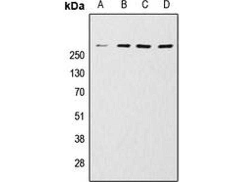 Western Blotting (WB) image for anti-MTOR Antikörper (Mechanistic Target of Rapamycin (serine/threonine Kinase)) (C-Term) (ABIN2705013)