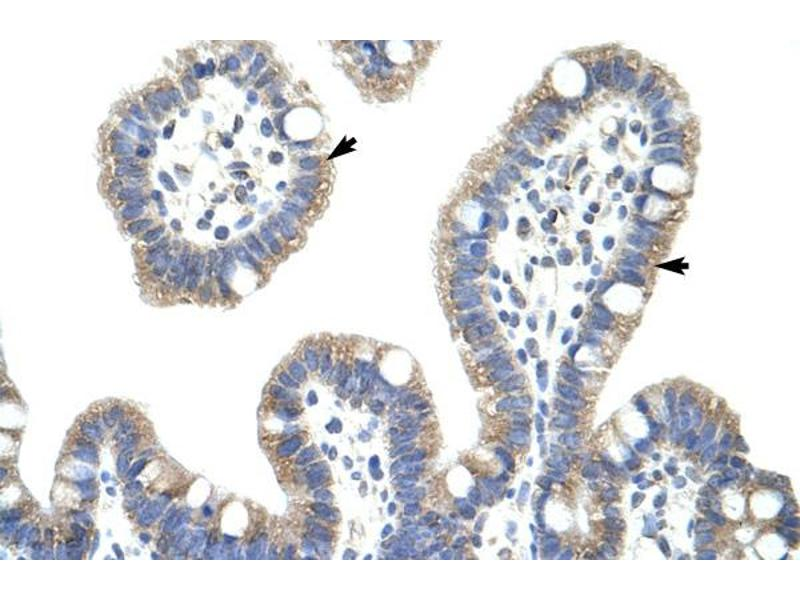 Immunohistochemistry (IHC) image for anti-NFKBIB antibody (Nuclear Factor of kappa Light Polypeptide Gene Enhancer in B-Cells Inhibitor, beta) (C-Term) (ABIN2775837)