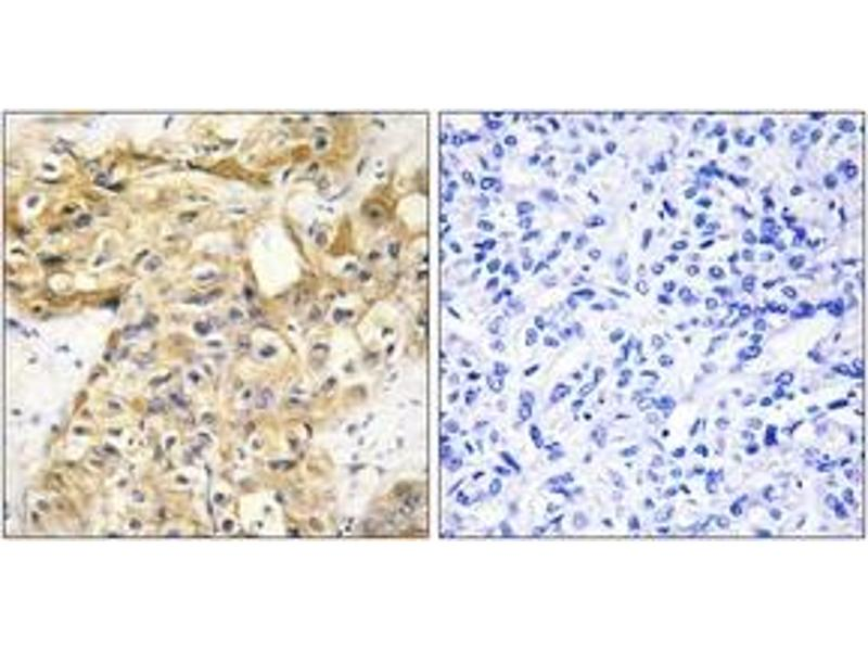 Immunohistochemistry (IHC) image for anti-Collagen, Type XVIII, alpha 1 (COL18A1) (AA 801-850) antibody (ABIN1534358)