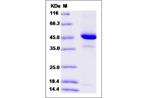 Image no. 1 for Regenerating Islet-Derived Family, Member 4 (REG4) (AA 23-158) protein (Fc Tag) (ABIN2004052)