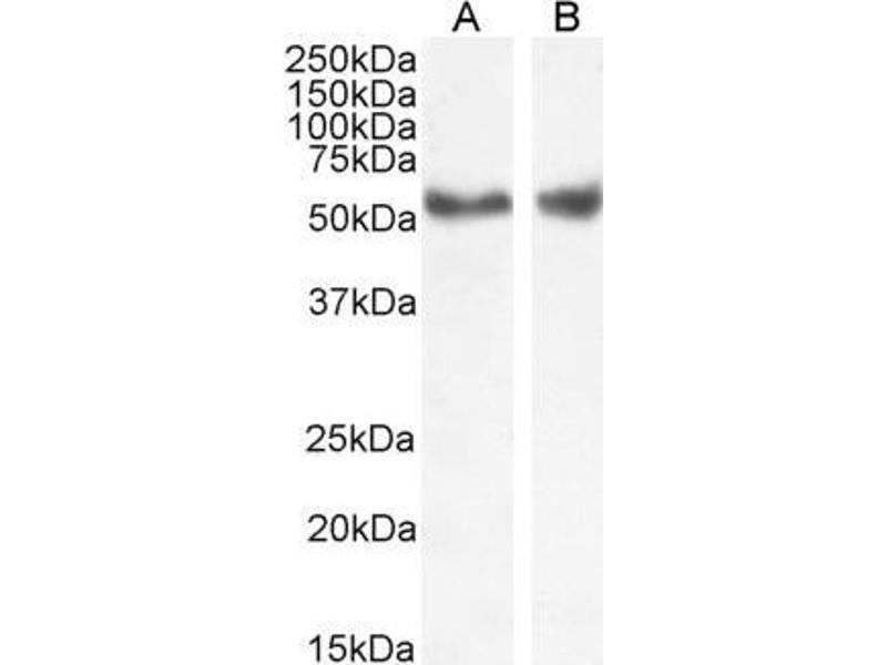 Image no. 1 for anti-Nuclear Receptor Subfamily 1, Group H, Member 2/3 (NR1H2/3) (Internal Region) antibody (ABIN185294)
