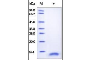Image no. 1 for CD9 (CD9) (AA 112-195) protein (His tag) (ABIN2180855)