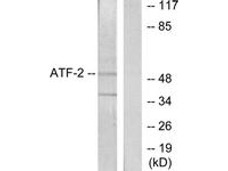 Western Blotting (WB) image for anti-Activating Transcription Factor 2 (ATF2) (AA 29-78) antibody (ABIN1532804)