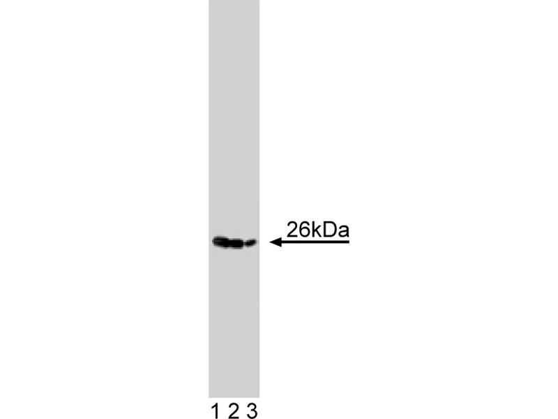 Western Blotting (WB) image for anti-MAD2 Mitotic Arrest Deficient-Like 2 (Yeast) (MAD2L2) (AA 81-180) antibody (ABIN968795)