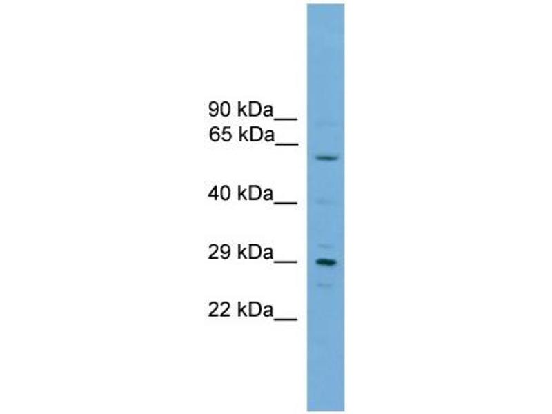 Western Blotting (WB) image for anti-RPA Interacting Protein (RPAIN) (C-Term) antibody (ABIN2777047)