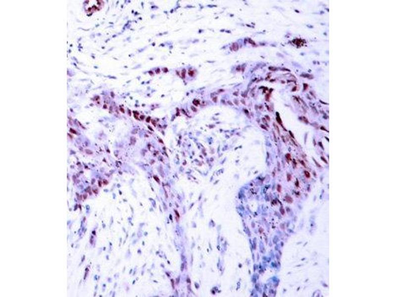 Immunohistochemistry (IHC) image for anti-Progesterone Receptor (PGR) (pSer190) antibody (ABIN3019638)