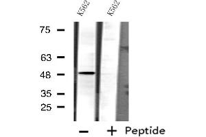 Image no. 3 for anti-Cytochrome P450, Family 3, Subfamily A, Polypeptide 4 (CYP3A4) antibody (ABIN6258075)