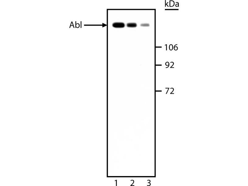 Western Blotting (WB) image for anti-ABL1 antibody (C-Abl Oncogene 1, Non-Receptor tyrosine Kinase) (ABIN967410)