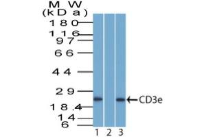 Western Blotting (WB) image for anti-CD3E antibody (CD3e Molecule, epsilon (CD3-TCR Complex)) (ABIN4291521)