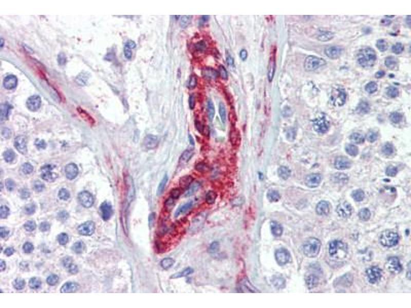 Image no. 3 for anti-PRKG antibody (ABIN462375)