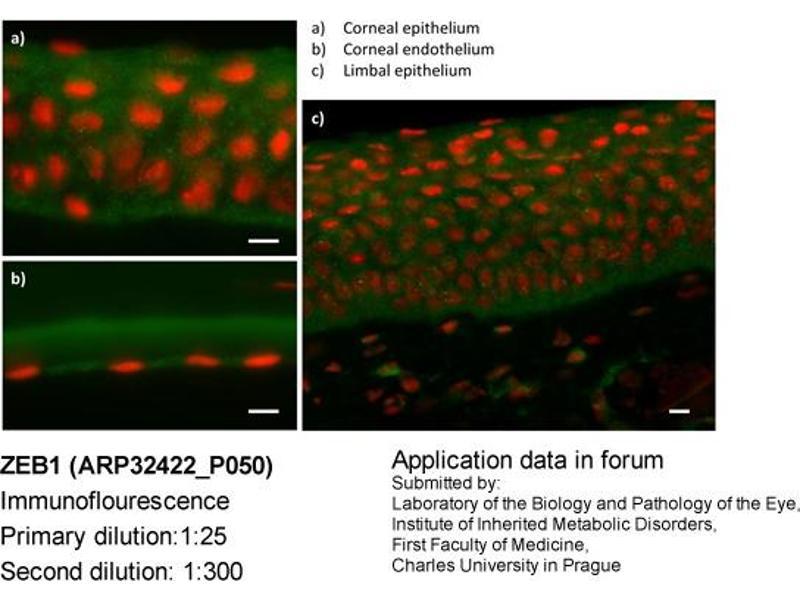 Image no. 3 for anti-ZEB1 antibody (Zinc Finger E-Box Binding Homeobox 1) (N-Term) (ABIN486932)