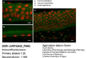 Image no. 3 for anti-Zinc Finger E-Box Binding Homeobox 1 (ZEB1) (N-Term) antibody (ABIN2779631)