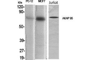 Image no. 2 for anti-A Kinase (PRKA) Anchor Protein 8 (AKAP8) (Internal Region) antibody (ABIN3183225)