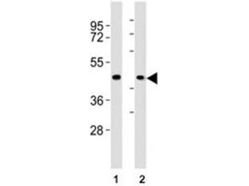Image no. 3 for anti-Chemokine (C-C Motif) Receptor 1 (CCR1) (AA 13-44) antibody (ABIN3028520)
