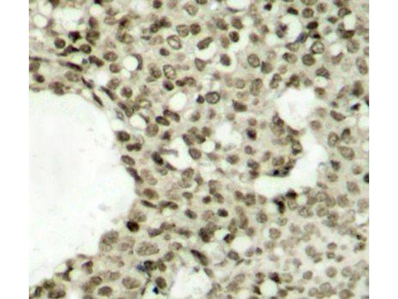 Immunohistochemistry (Paraffin-embedded Sections) (IHC (p)) image for anti-Signal Transducer and Activator of Transcription 1, 91kDa (STAT1) (pSer727) antibody (ABIN2988309)