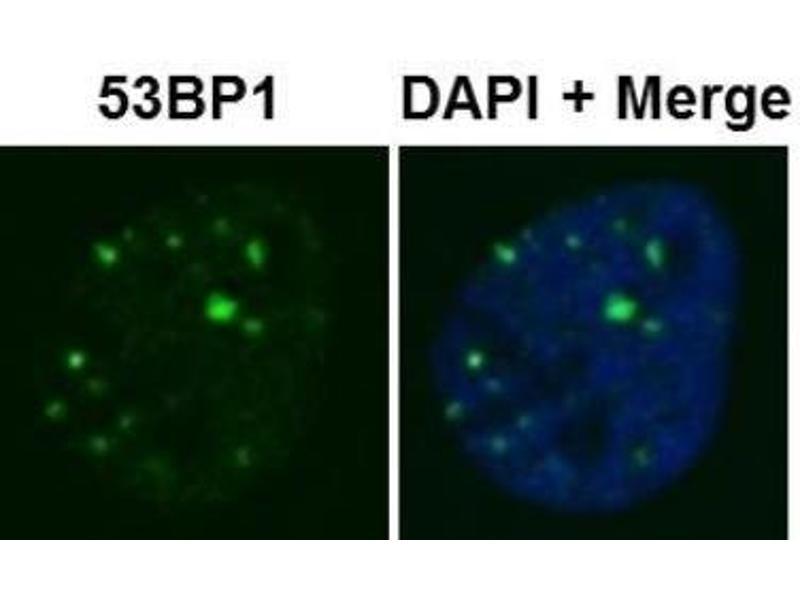 Immunofluorescence (IF) image for anti-TP53BP1 antibody (Tumor Protein P53 Binding Protein 1) (ABIN152191)