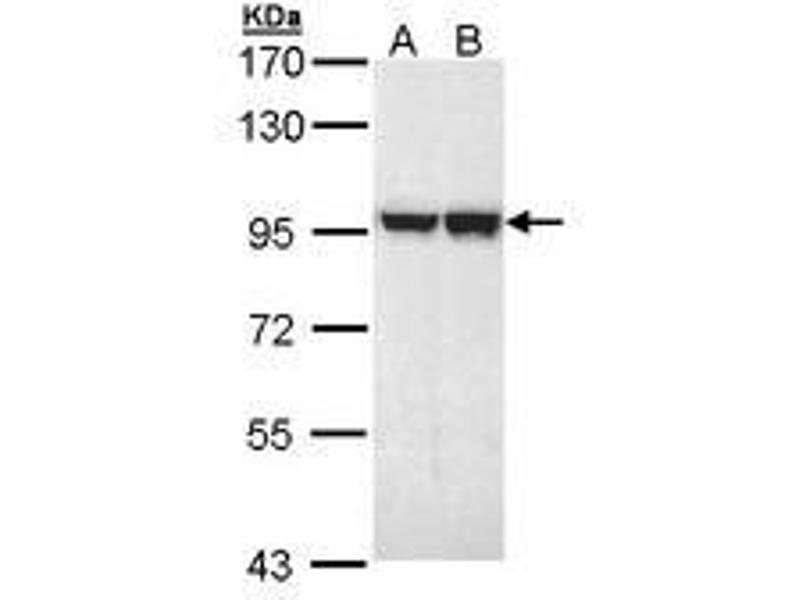 image for anti-MALT1 antibody (Mucosa Associated Lymphoid Tissue Lymphoma Translocation Gene 1) (ABIN467534)