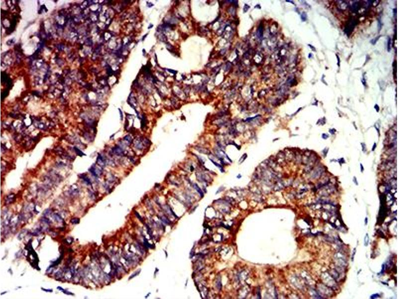 Immunohistochemistry (IHC) image for anti-BCL2-Antagonist/killer 1 (BAK1) (AA 29-187) antibody (ABIN5611250)