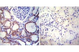Immunohistochemistry (Paraffin-embedded Sections) (IHC (p)) image for anti-Calnexin (CANX) antibody (ABIN152677)