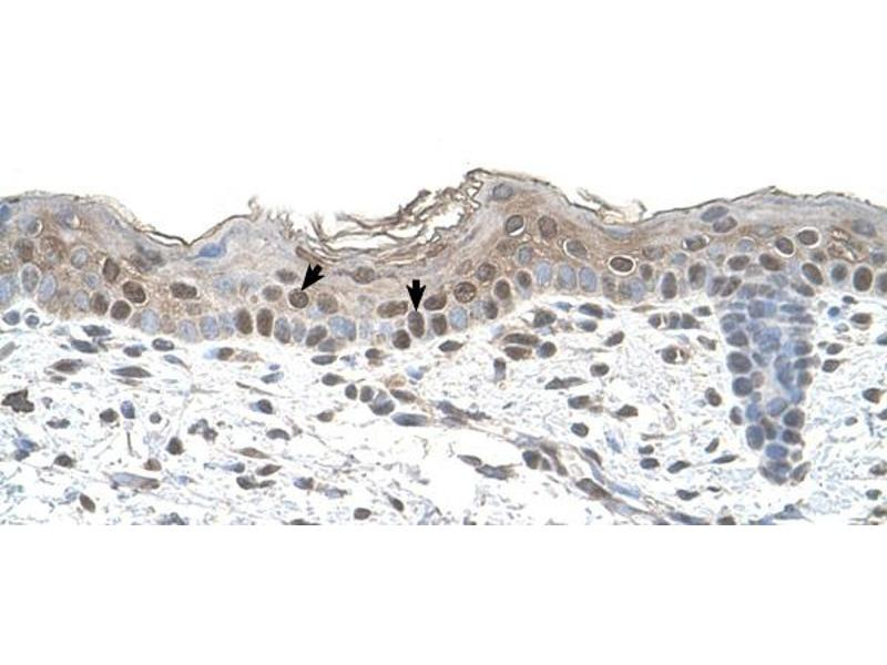 Immunohistochemistry (IHC) image for anti-Arrestin, beta 2 (ARRB2) (Middle Region) antibody (ABIN2783190)