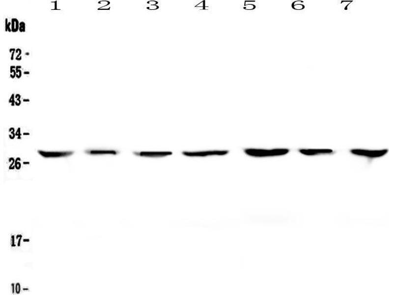 Western Blotting (WB) image for anti-tyrosine 3-Monooxygenase/tryptophan 5-Monooxygenase Activation Protein, zeta Polypeptide (YWHAZ) antibody (ABIN5693157)