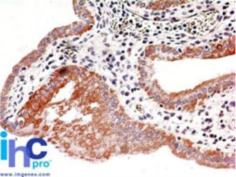 Immunohistochemistry (Paraffin-embedded Sections) (IHC (p)) image for anti-IKBKB antibody (Inhibitor of kappa Light Polypeptide Gene Enhancer in B-Cells, Kinase beta) (ABIN252473)